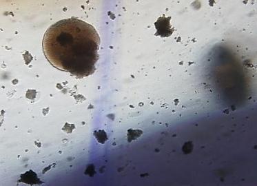 Description: D:\FOLDER INDRA MIKRO\mikrobiologi\CHAROEN POKPHAND DATA\hasil kerja method dev\gambar koloni\koloni 10X sosis\Image6 - Copy.jpg